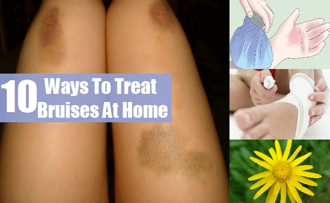 Ways To Treat Bruises At Home