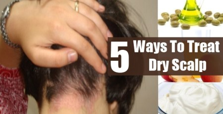 Ways To Treat Dry Scalp