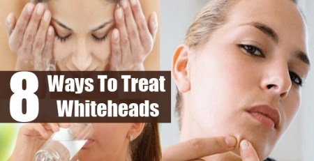 Ways To Treat Whiteheads