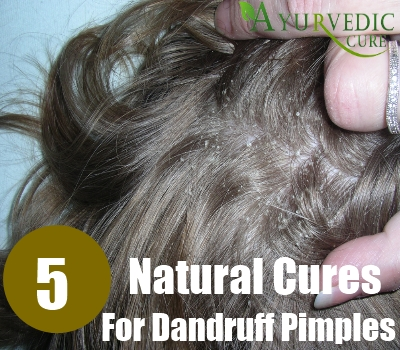 5 Natural Cures For Dandruff Pimples