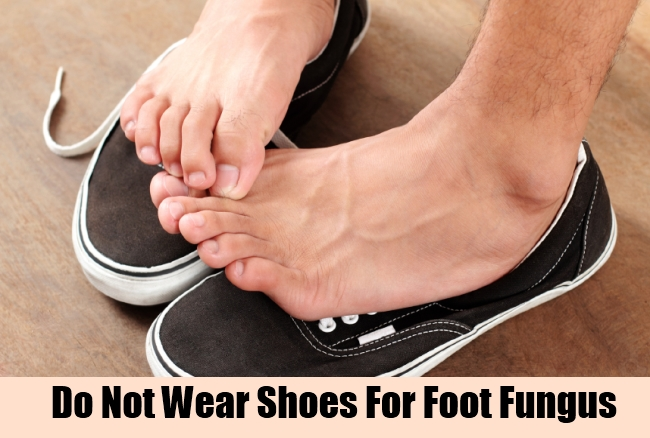 Do Not Wear Shoes For Foot Fungus