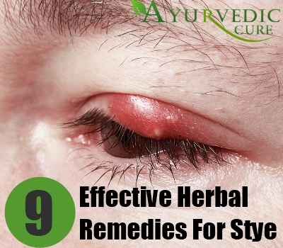 Effective Herbal Remedies For Stye