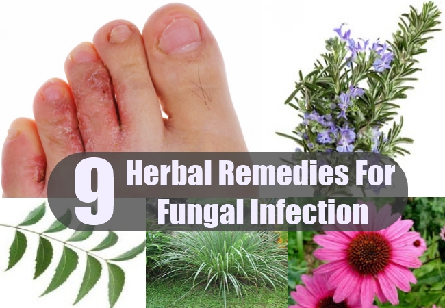 fungal infection herbal remedies, natural treatments and cure, Skeleton