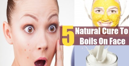 Natural Cure To Boils On Face