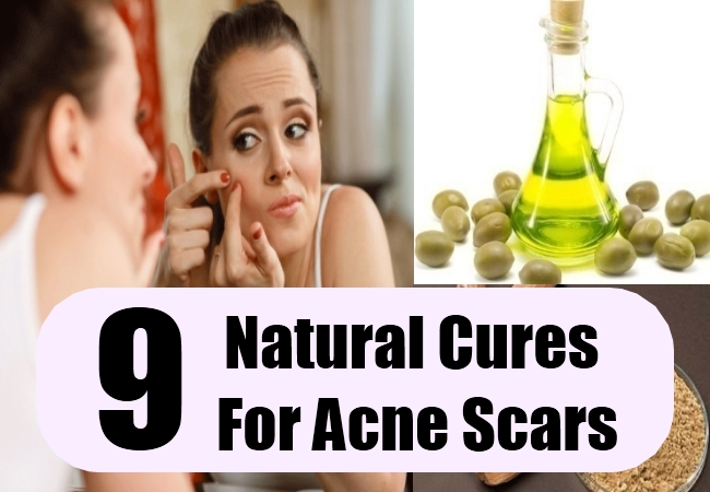 Natural Cures For Acne Scars
