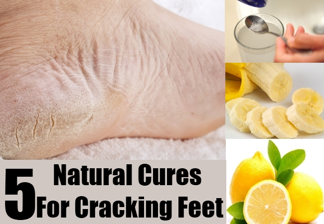 Natural Cures For Cracking Feet