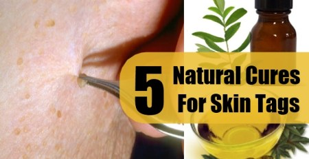 Natural Cures For Skin Tags