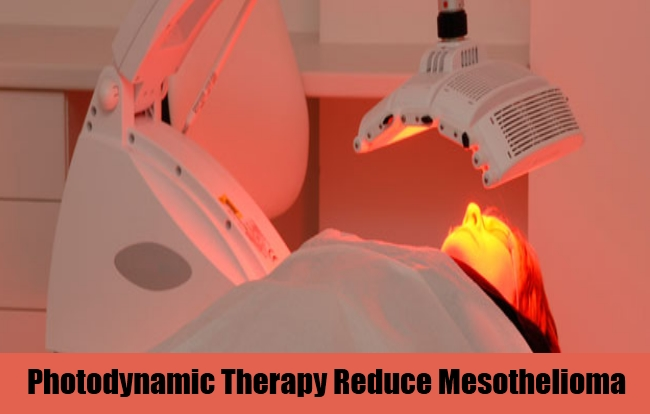 Photodynamic Therapy Reduce Mesothelioma