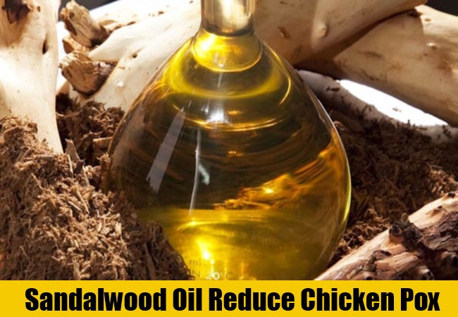 Sandalwood Oil Reduce Chicken Pox
