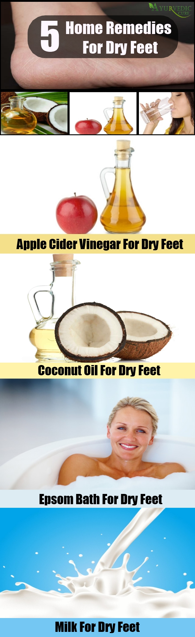 Useful Home Remedies For Dry Feet