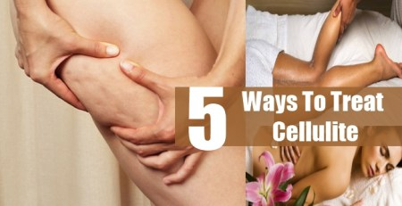 Ways To Treat Cellulite