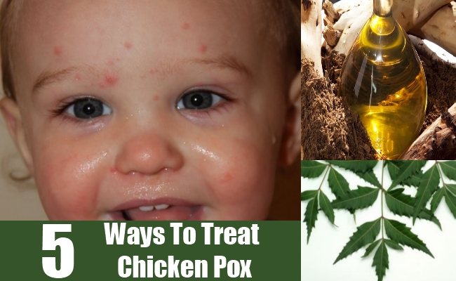 Ways To Treat Chicken Pox