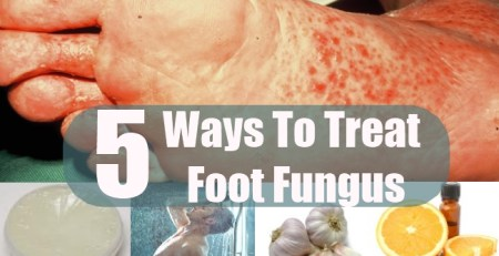 Ways To Treat Foot Fungus