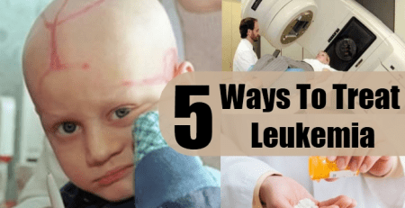 Ways To Treat Leukemia