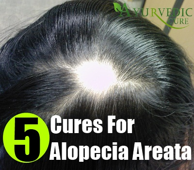 Top 5 Natural Cures For Alopecia Areata