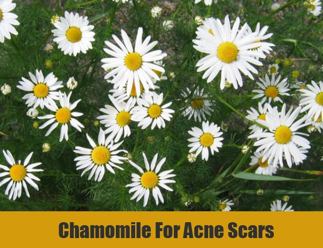 Chamomile For Acne Scars