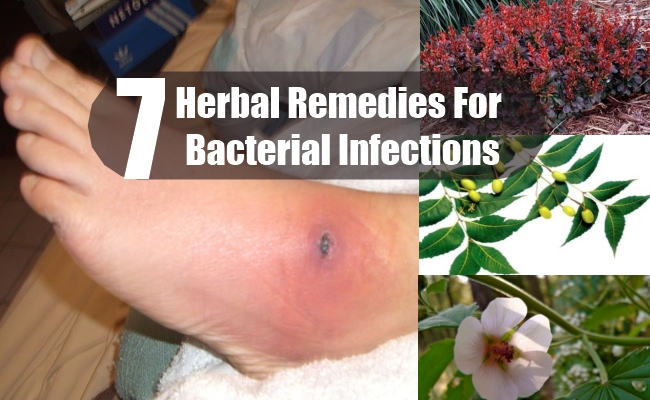 Herbal Remedies For Bacterial Infections
