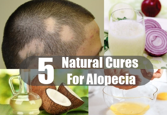 Natural Cures For Alopecia