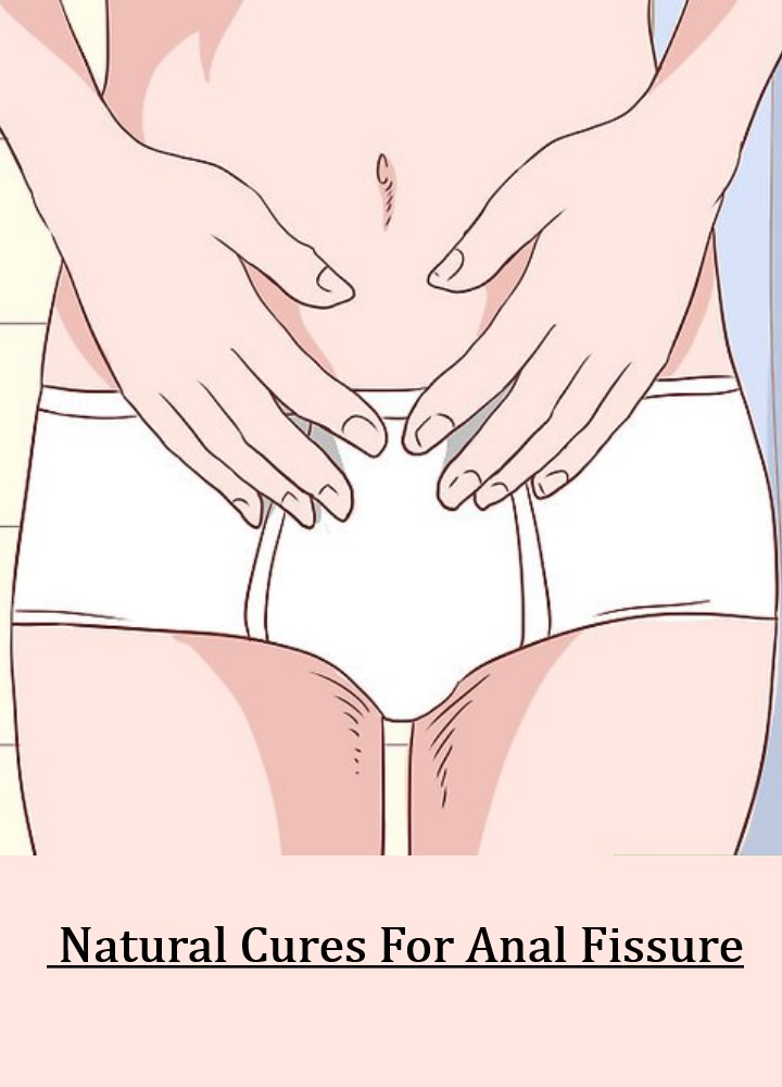 Idea How to get rid of anal fissure can recommend