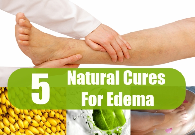 Natural Cures For Edema