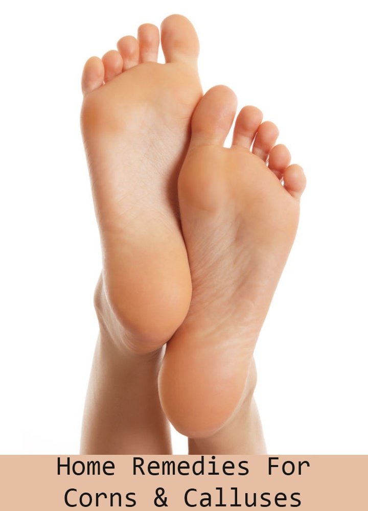 Remedies For Corns And Calluses