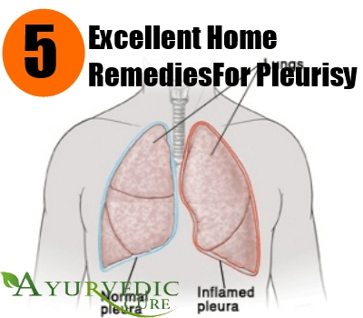 5 Excellent Home Remedies For Pleurisy