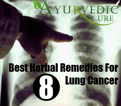 8 Best Herbal Remedies For Lung Cancer