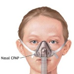 Take help of CPAP and BiPAP