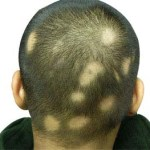 ayurveda treatment for alopecia