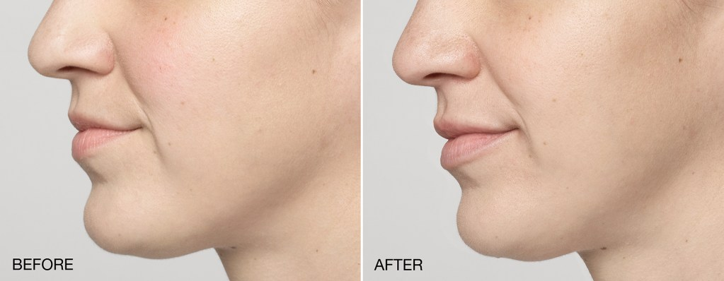 Restylane Silk for lip enhancement at Azura Skin Care Center in Cary, NC