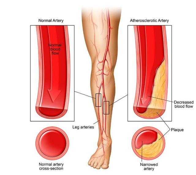Peripheral Arterial Disease Comparison Illustration