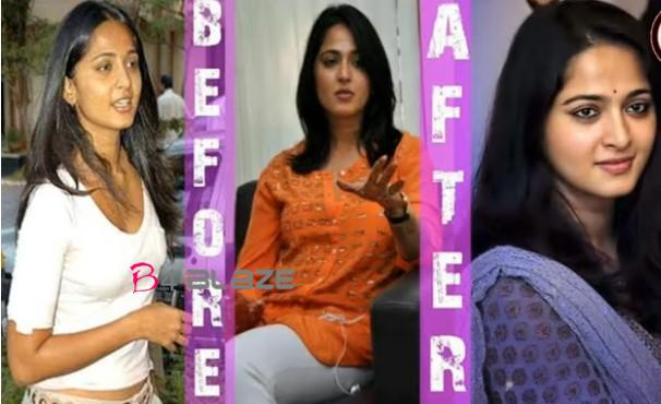 anushka shetty  Before and after plastic surgery