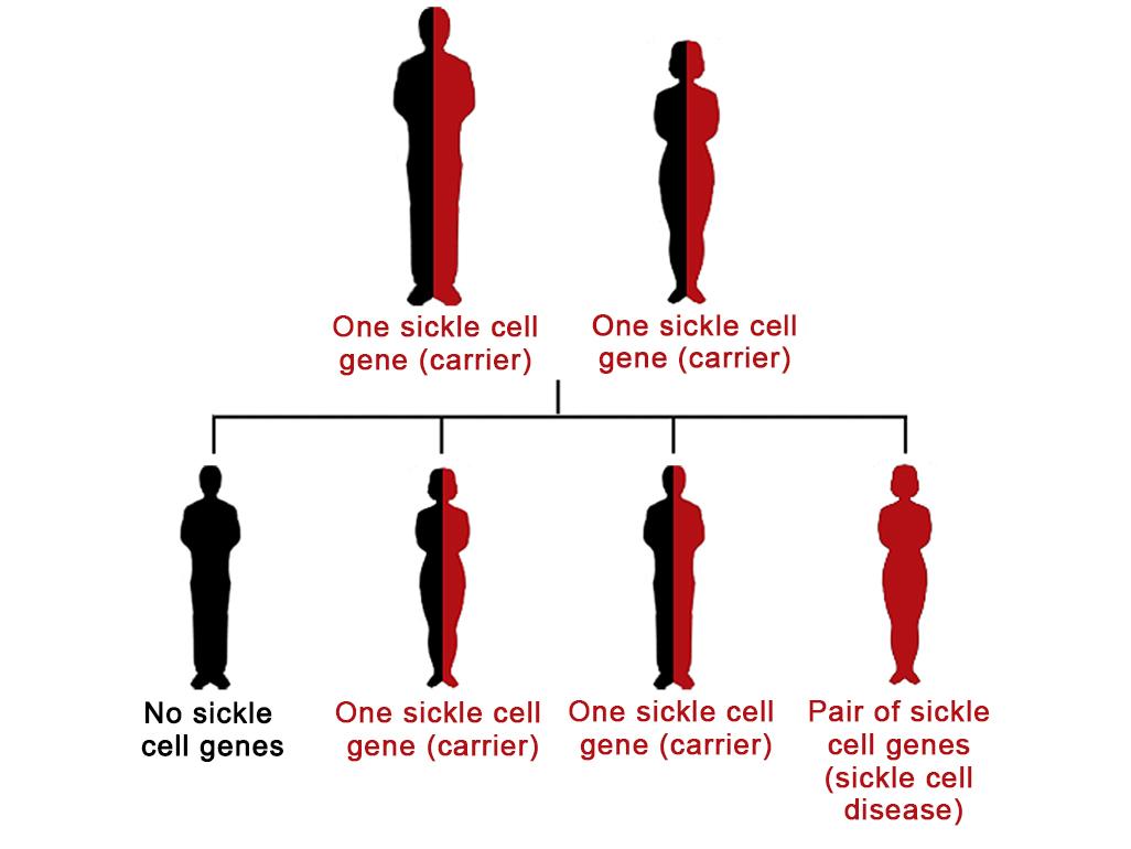 Sickle Cell Disease In Babies
