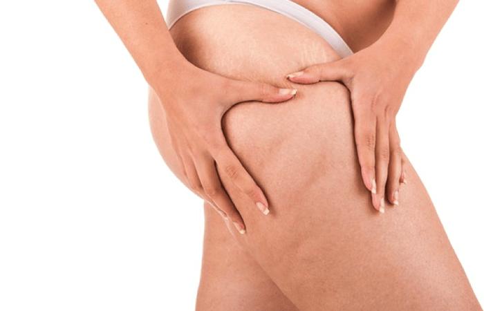 come ridurre le cellule di grasso nelle gambe