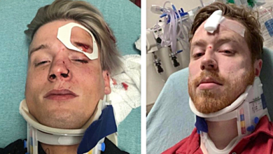 Gay Couple Brutally Attacked In Austin, TX for Holding Hands