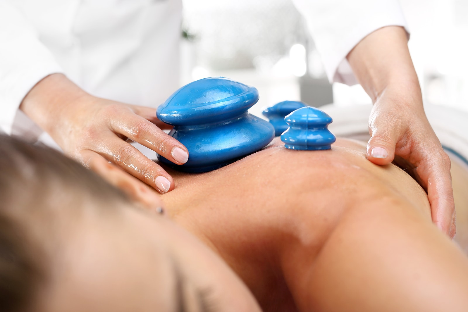 3 Reasons Why You Should Try Cupping Therapy