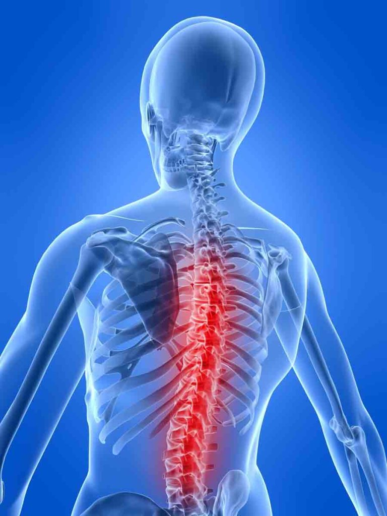 Chronic Back Pain Sherman Oaks
