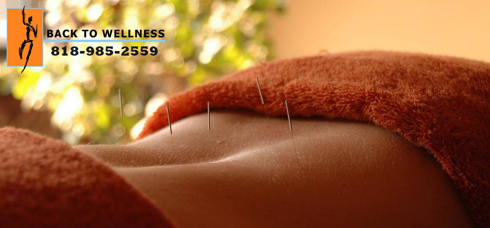 The Healing Power of Acupuncture in Studio City