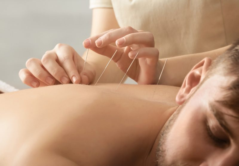 acupuncture in Studio City