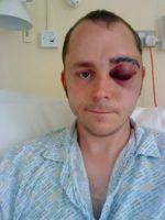 man after brain surgery