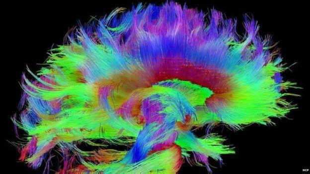 Este diagrama de las conexiones del cerebro nos ofrece una idea de cómo funciona.
