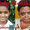 Help Monika - a 12-year-old with severe Burns! - 15 Dec 14