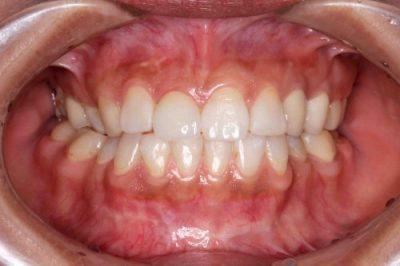 群馬 歯科 移植 インプラント