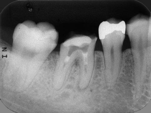群馬 歯科 根管治療