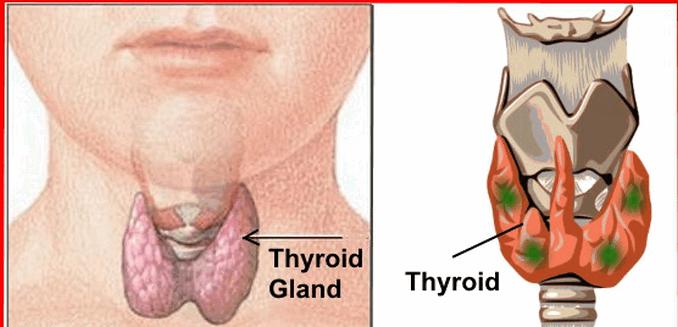 থাইরয়েড এর সমস্যা হলে কি করবেন – Thyroid Problem Treatment