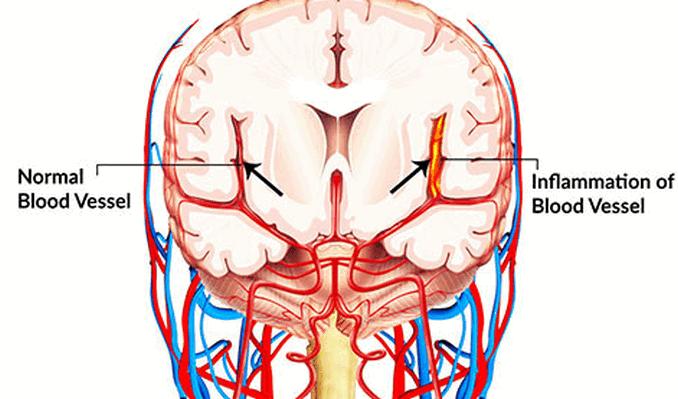 Cerebral Vasculitis – সেরিব্রাল ভাস্কুলাইটিস – মস্তিষ্কের রক্তনালীর প্রদাহ রোগ