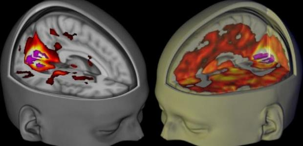 A team of scientists have visualised the human brain under the influence of LSD, lysergic acid diethylamide, for the first time ever in a recent […]