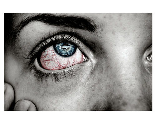 Don't Risk Eye Damage with Halloween Contacts  