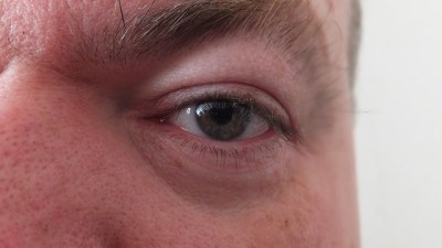 Can You Correct A Droopy Eyelid?