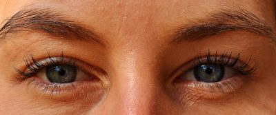 Tighten Skin Under The Eyes